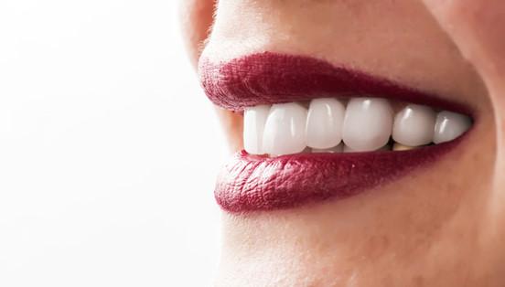 Aplicarea fațetelor dentare pentru un zâmbet impecabil: este sau nu dureroasă procedura?